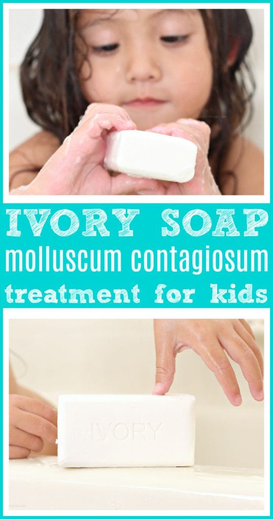 Ivory soap to treat molluscum contagiosum